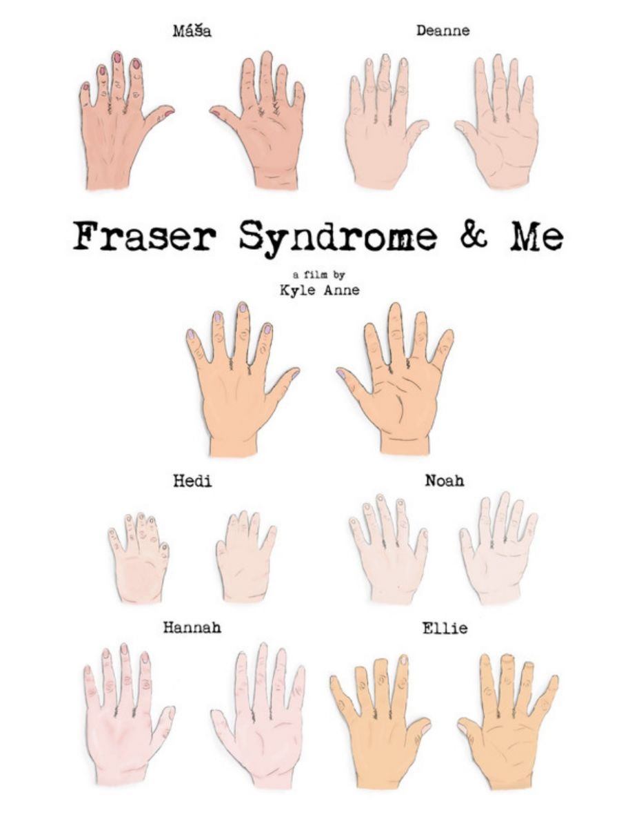 Cartel de Fraser Syndrome & Me